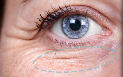 Ögonlocksopereration