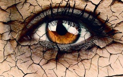 torra ögon is amband med laserbehandling