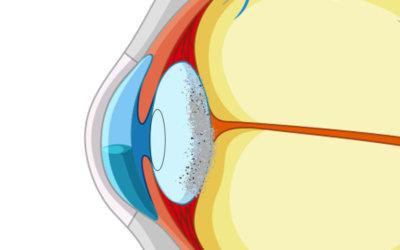 efterstarr-vårda ögon