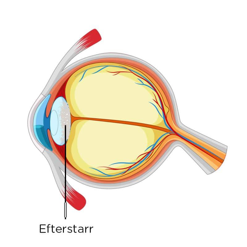Efterstarr Vårda Ögon